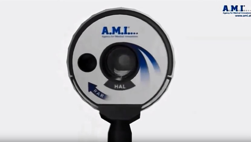 A.M.I -טיפול עם מכשור טכנולוגי מתקדם בטחורים